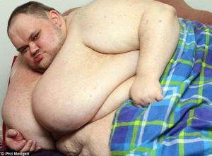 After begging for help..Britain's fattest man dies at 33